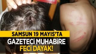 Samsun 19 Mayıs'ta gazeteci muhabire feci dayak