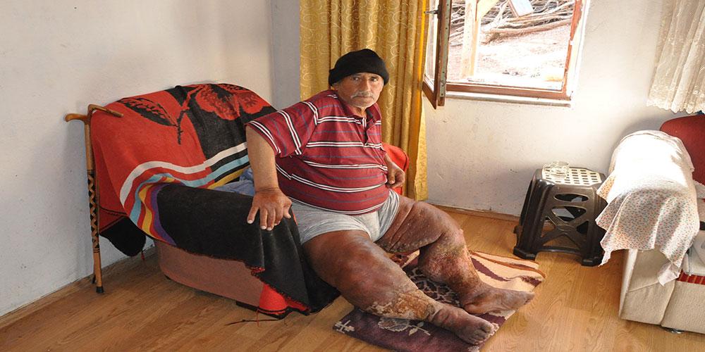 Fil hastalığı bacaklarını yok ediyor